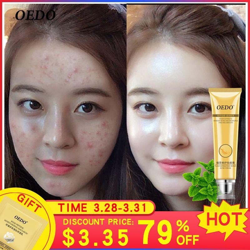 À base de plantes extrait de plante de réparation crème enlever les marques d'acné réparation pores rugueux nettoyage en profondeur du visage cornée soins de la peau du visage crème 20g