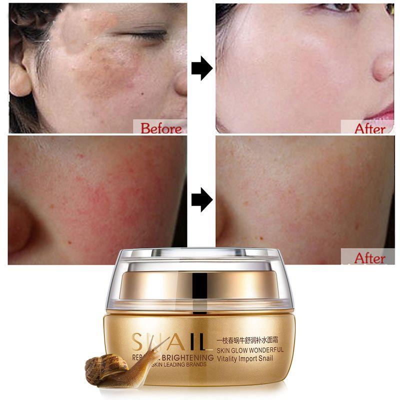 Crème hydratante pour le visage cicatrice supprimer creme âge Spot Pigment blanchissant Anti-rides crème beauté Miracle lueur jour nuit