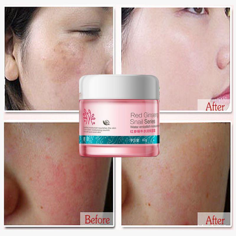 Ginseng rouge escargot crème soins du visage traitement de la peau réduire les cicatrices visage acné boutons hydratant blanchissant Anti-taches crème de vieillissement