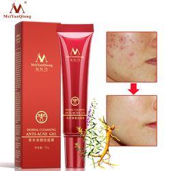 De haute Qualité À Base de Plantes Gel Nettoyant Visage Anti acné traitement crème À Base de Plantes cicatrice enlèvement peau grasse Taches D'acné soins de la peau visage