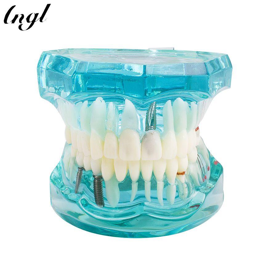 1 pièce adulte résine dentaire restauration modèle dents étude modèle dentiste outils dentisterie laboratoire Transparent modèle