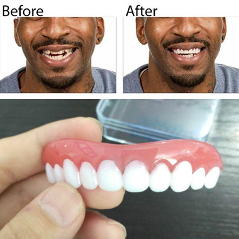 Professional Perfect Instant Smile Comfort Fit Flex False Dentures Teeth Top Cosmetic Dental Dental Silica Gel Upper Row