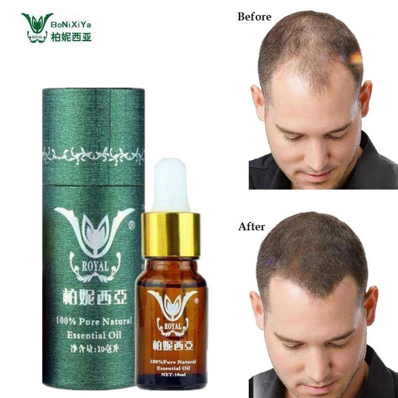 Cheveux croissance Essence Salon professionnel coiffures kératine soins capillaires produits coiffants Anti perte de cheveux produits denses coup de soleil cheveux