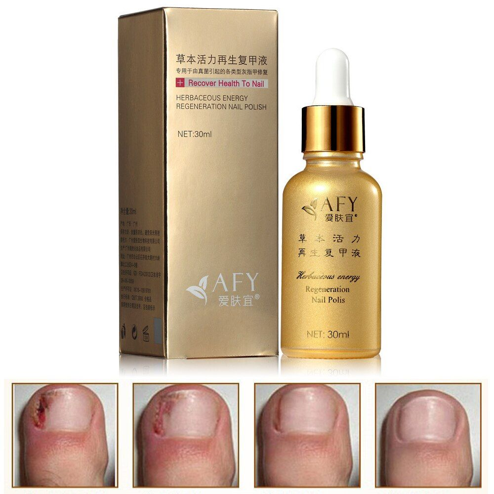 2015 Fungal Nail Treatment Essence Oil Hand and Foot Whitening Toe Nail Fungus Removal Feet Care Nail Polish Tools Nail Gel