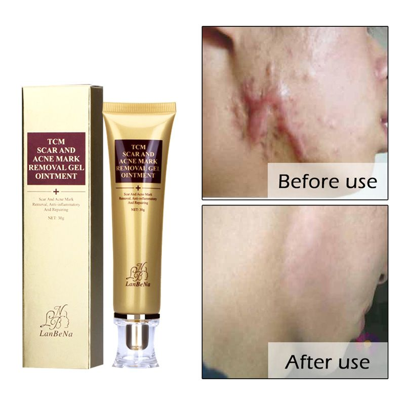 LANBENA Acne Scar Stretch Marks Remover Cream 30ml Skin Repair Face Cream Acne Spots Acne Treatment Blackhead Whitening Cream