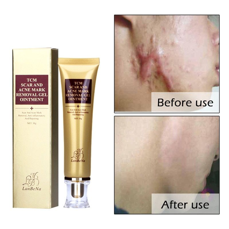 2017 NA Acne Scar Cream Ginseng Essence Anti Acne Remover Cream Face Care Makeup Spots Stretch Marks Remove Scar Product WH998