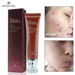 ARTISCARE Scar Removal Cream Ginseng Extract Skin Care Repair Spots Acne Treatment Stretch Mark facial blackhead Bleaching Cream