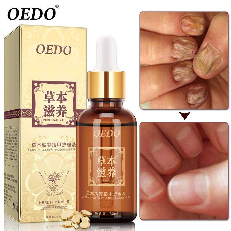 Herbal Fungal Nail Treatment Essential oil <font><b>Hand</b></font> and Foot Whitening Toe Nail Fungus Removal Infection Feet Care Polish Nail Gel