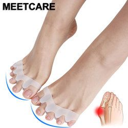 5 Toes Foot Brace Hallux Valgus Correction Overlapping Hammer Separator Correction Foot Splint Bone Orthotic Device Feet Care