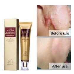 Original Acne Scar Cream Ginseng Essence Anti Acne Remover Cream Face Care Makeup Spots Stretch Marks Remove Scar