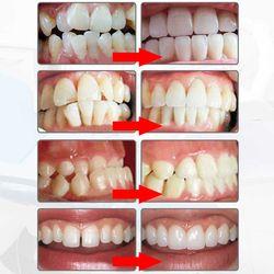 Myobrace зубной ортодонтия подтяжки Отбеливание зубов зубные ортопедии зуб средство выравнивания ортодонтического слуг