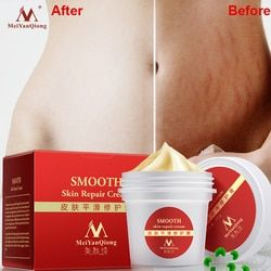 High Quality Smooth Skin Cream For Stretch Marks Scar Removal To Maternity Skin Repair Body Cream Remove Scar Care Postpartum