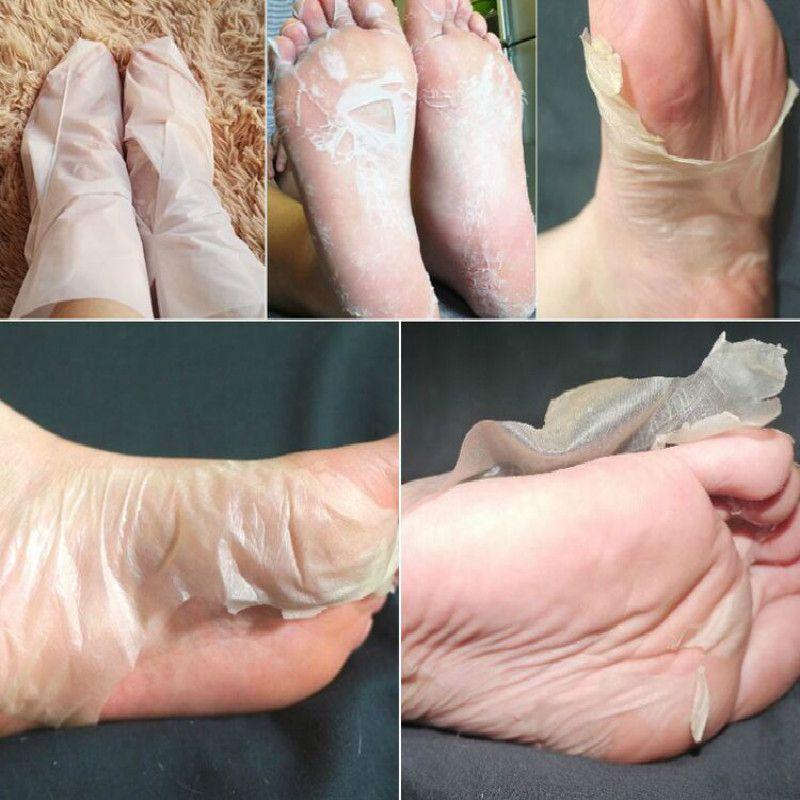 BAIMISS 1 Bag=2 PCS Peeling Exfoliating Foot Mask Feet Mask Remove Dead Skin Cuticles Heel Foot Care Pedicure Socks High Quality