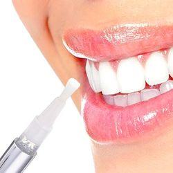 1 PCS Hot Creative Efficace Blanchiment Des Dents Pen Dents Gel Blanchissant Bleach Stain Eraser Sexy Celebrity Sourire Dents Soins