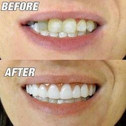 Silikon Yang Nyaman Senyum Sempurna Veneer Pria Wanita Gigi Atas Kosmetik Veneer Gigi Cover Kecantikan Alat Pemutih Gigi Baru