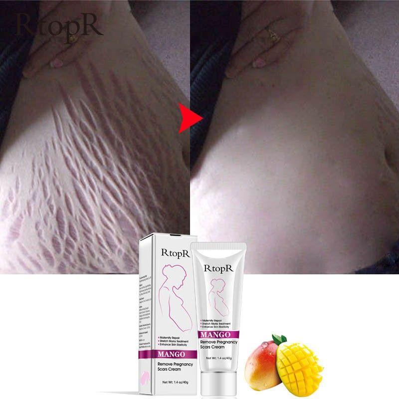 Doux naturel Non irritant Mangue Crème Vergetures Grossesse Réparation Cicatrice Slack Ligne Abdomen Crème Vergetures
