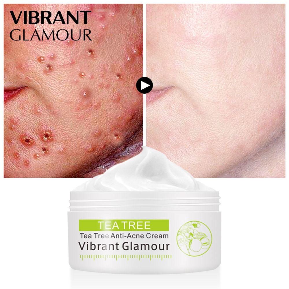 VIBRANT GLAMOUR Tea Tree acne cream Anti-acne print Face cream remover acne treatment Facial Eliminates Oil control Skin care
