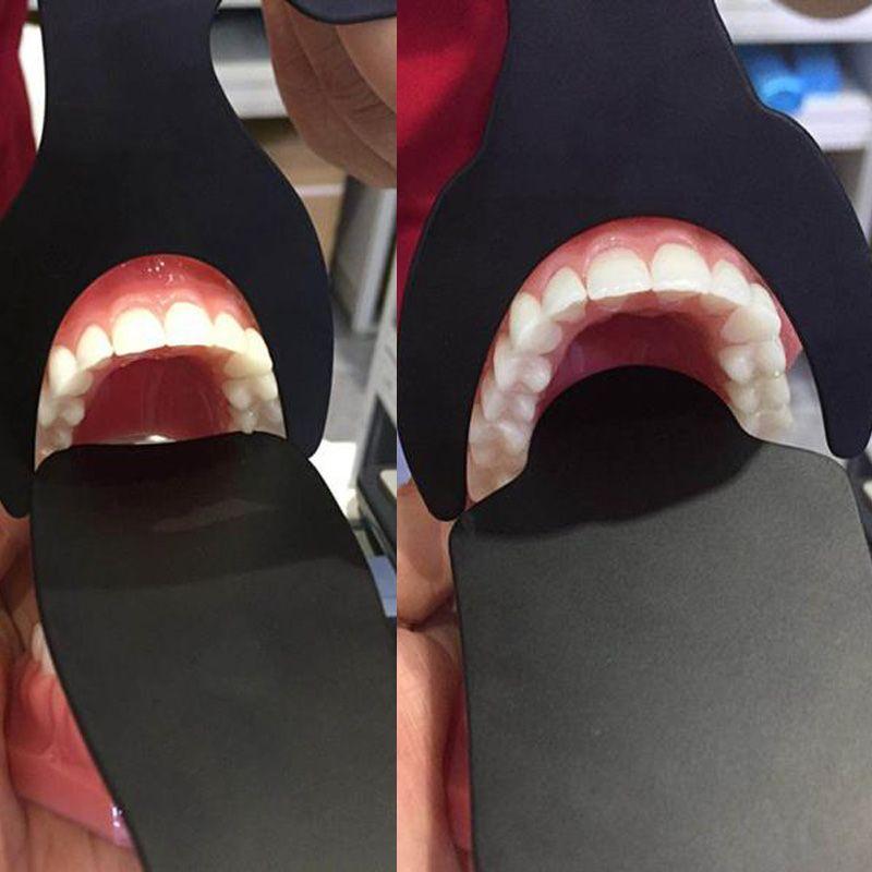 1 stücke Dental Kieferorthopädische Fotografische Bild Kontrast Bord Oral Cheek Schwarz Platte Contrasters Autoklavierbar Labor Instrument 6 Größe