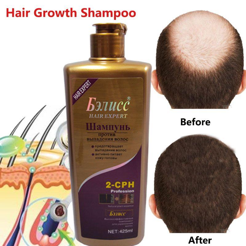 Shampooing cheveux Anti-off croissance des cheveux extraits naturels à base de plantes repousse des cheveux shampooing rapide soins professionnels 3 types livraison gratuite