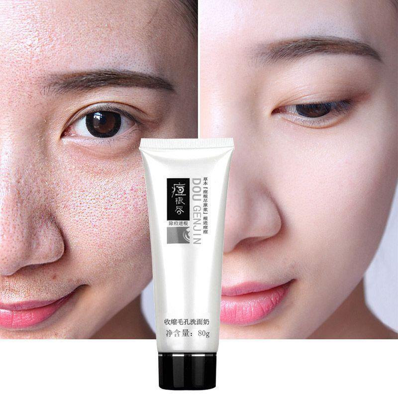 Shrink Pore Minimizer Cleanser exfoliating facial pore cleanser face scrub face wash facial cleaning pimple face skin care tools