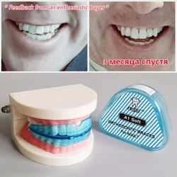 1 Pcs Dental Gigi Alat Ortodonti Pelatih Alignment Braces Juru Bicara Gigi Orthotics Gigi Perawatan Gigi Whitening
