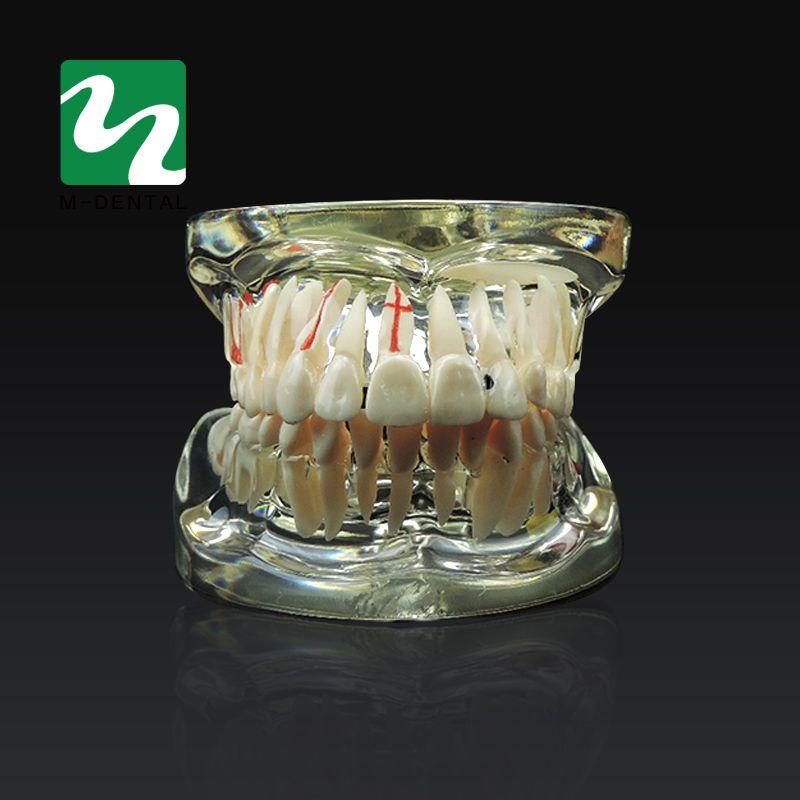 Étude dentaire Dent Modèle Adulte Pathologique et Maladie Enseignement Dents Modèle Amovible Pour Livraison Gratuite