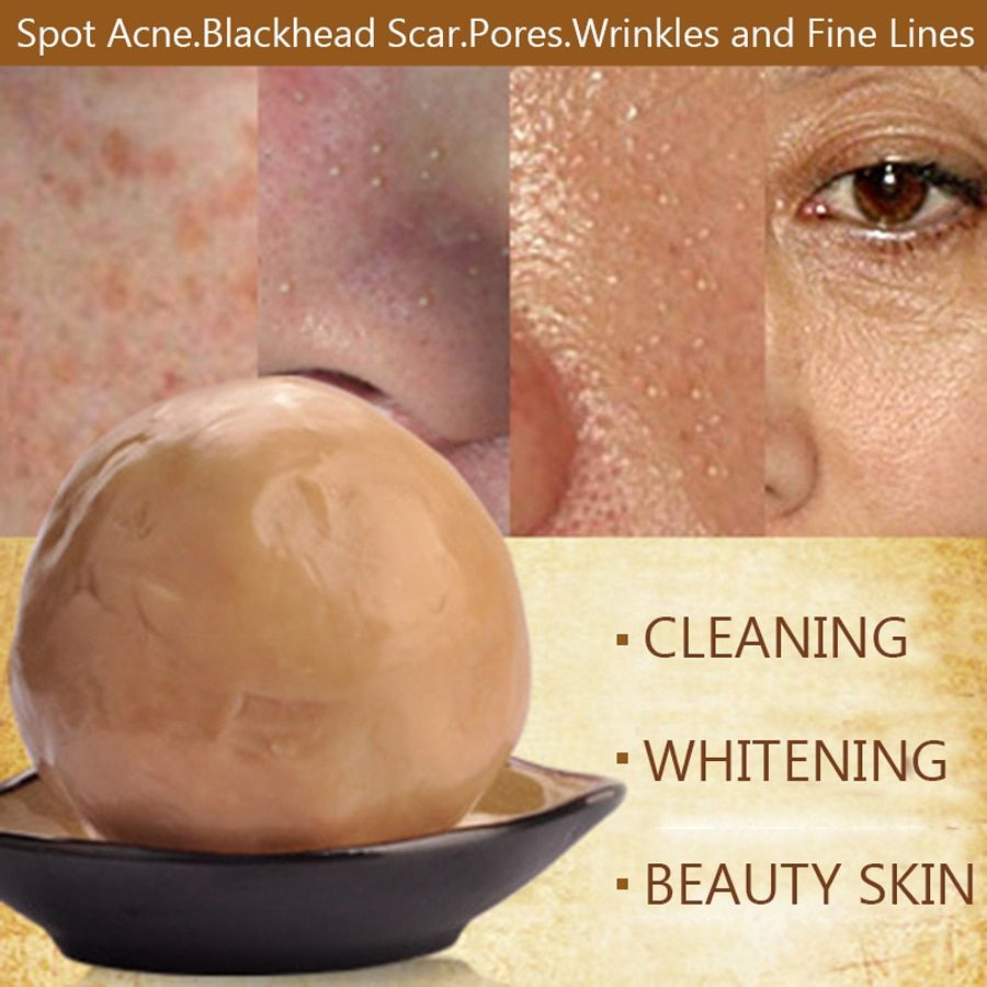 Best Face Skin Care Chinese Herbal Natural Rose Essence Facial Soap 100g Whitening Acne Treatment Blackhead Remove Anit-Wrinkle