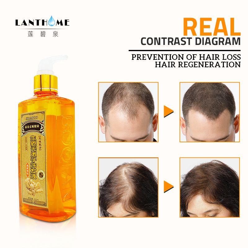 300 ml Gingembre Shampooing Anti Cheveux Calvitie Anti Perte De Cheveux Pellicules shampoing cheveux noirs Professionnel Se Développent Épais Croissance des Cheveux Produits