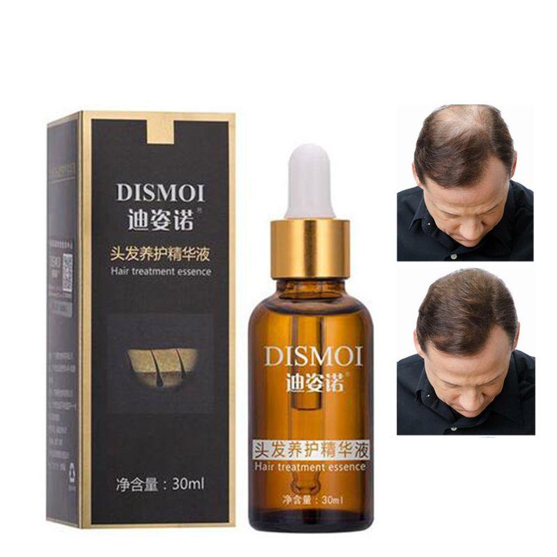 Produits de Perte De cheveux Naturel Sans Effets Secondaires Pousser les Cheveux Plus Rapide Repousse Des Cheveux Produits de Croissance