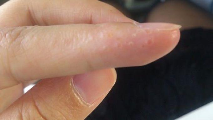 手指罅痕痕的小水泡, 原來係汗皰疹!