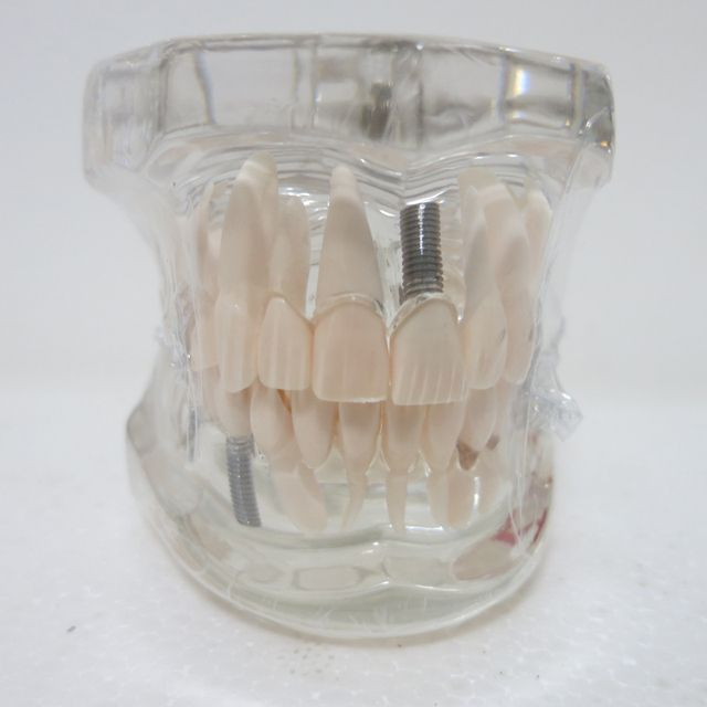 Dental materials Oral removable dental pathological model Special decoration Clinic personalized decorative Figurines