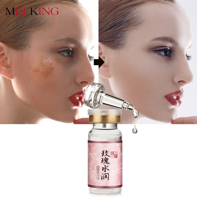 MEIKING Face Cream Rose Moistening Essence Whitening Serum Remove Acne Anti Wrinkle For Face Skin Care Blemish Facial Cream 10g