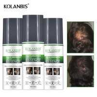 3 botellas de ginseng estimulan el crecimiento spray de suero para el cabello caída follicle tratamiento del cuero cabelludo hombre crecimiento espesante recrecimiento producto