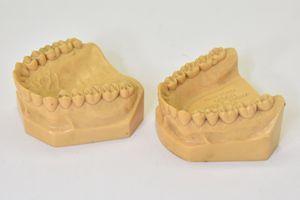 CUSP FOSSA DESIGN PETER K. THOMAS D.D.S. V-3044 P.K.T.-2 [歯科][顎歯模型][咬合]
