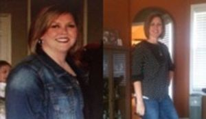 Before and After - Gastric Sleeve