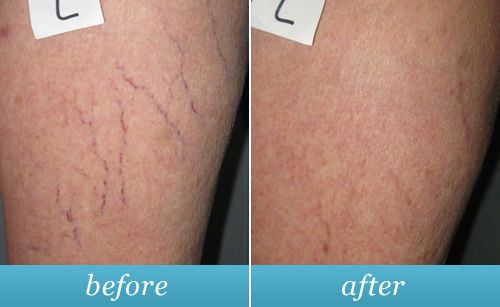 Before & after photo of spider veins