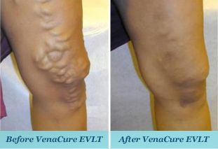 Before & after photo of varicose veins