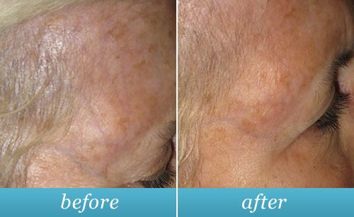 Before & after photo of facial veins