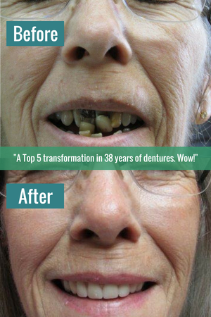 A Top 5 transformation in 38 years of dentures. Wow!
