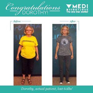 Image 2 | Medi-Weightloss