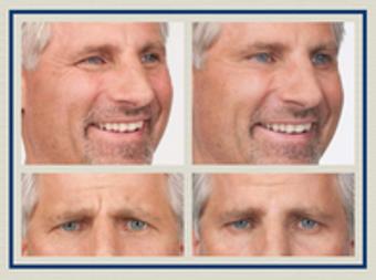 Image 5 | Facial Aesthetics