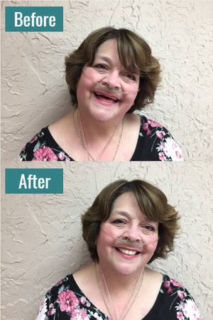 A beautiful before-and-after transformation.