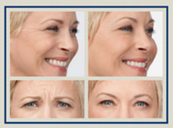 Image 8 | Facial Aesthetics