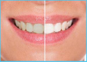 Image 2   Premier Dental Care
