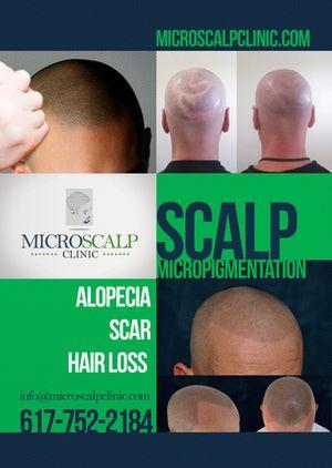 Micro Scalp Clinic  http://www.microscalpclinic.com/