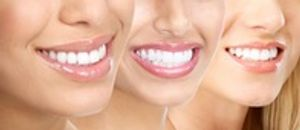 Healthy Smiles For A Lifetime.