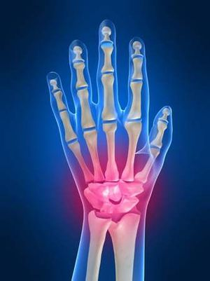 Dr. Budoff Hand Surgeon
