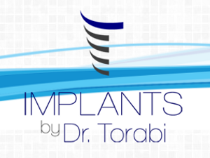 West LA Implants -  Dental Implants, Westwood Dental & Brentwood Dental, The leading Cosmetic Dentist, santa monica dentist, brentwood dentist and westwood dentist in West Los Angeles.