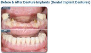 Before & After Denture Implants (Dental Implant Dentures)