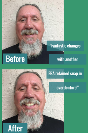 Fantastic changes with another ERA-retained snap-in overdenture!